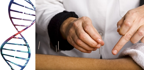 Acupuncture in Durham