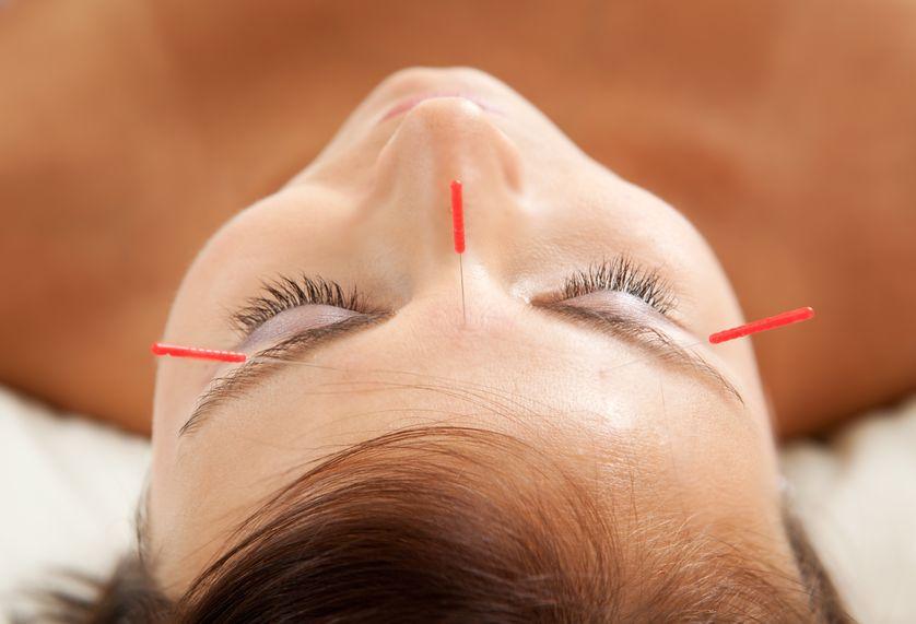Facial Rejuvenation Acupuncture in Durham