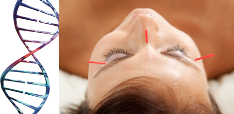 Facial Rejuvenation Acupuncture Durham