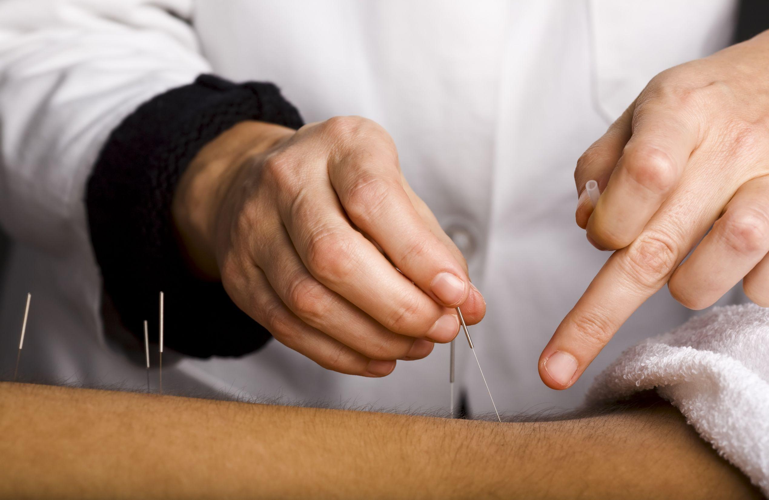 Acupuncture at NIHP Durham