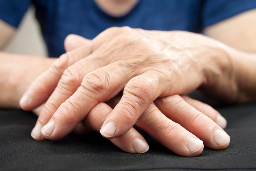Treatment to ease symptoms of arthritis in Durham